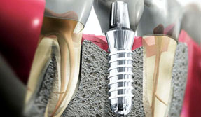 Изображение - Имплантация зубов системой Astra Tech(Швеция)