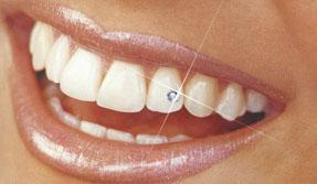 Изображение - Установка украшений зубов (скайсы)