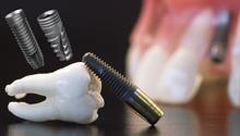 Изображение - Имплантация зубов системой Inno(Южная Корея)