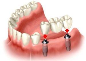 Имплантация зубов в Пушкино