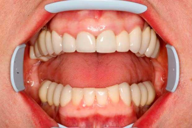 Украшение зубов причины симптомы и лечение мж