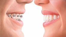 Изображение - Планирование ортодонтического лечения (изготовление слепков, расчет моделей и ТРГ)