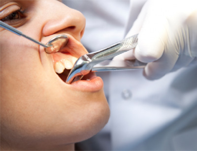 slozhnoe-udalenie-zuba