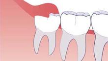 Изображение - Удаление зуба мудрости