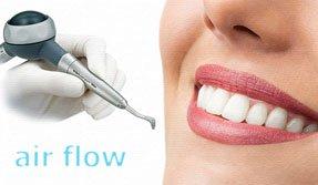 Изображение - Комплексная гигиена полости рта с применением аппарата Air-Flow KaVo Prophyflex 3 (две челюсти)
