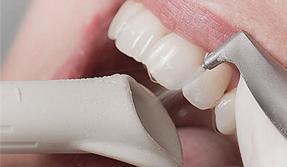 Изображение - Чистка зубов Air Flow