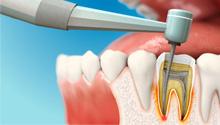 Изображение - Лечение каналов зуба