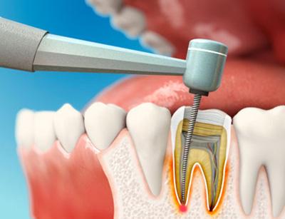 lechenie-kanalov-zuba